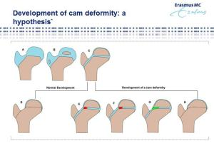 Increased loading over growth plate stimulates CAM deformity