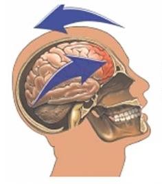 concussion-pix